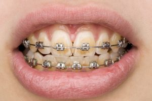 diy braces for teeth
