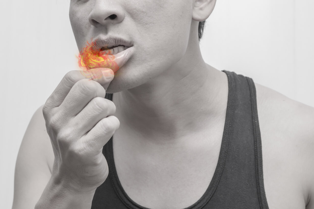 crohn's mouth ulcers