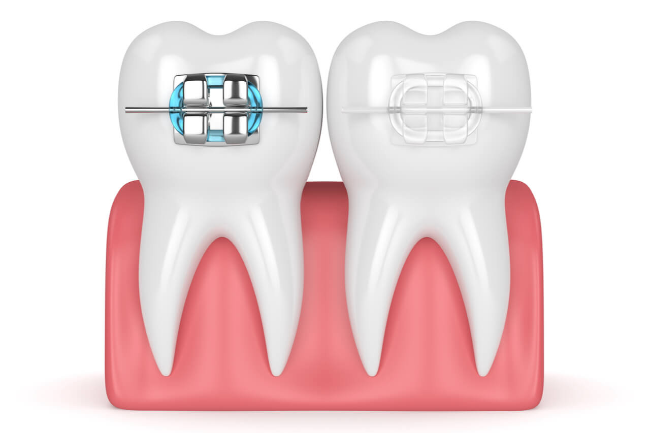 clear braces vs metal