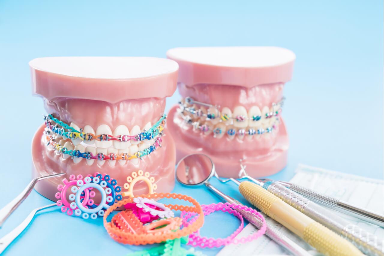 Modern Orthodontics